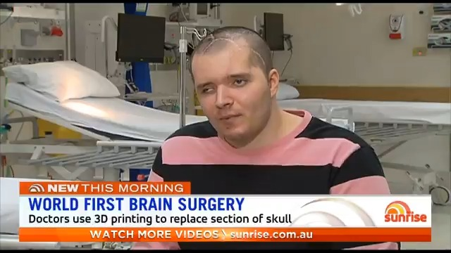 A Brisbane man has undergone world-first brain surgery after a motorcycle accident nearly claimed his life. Using 3D printing, doctors were able to replace a section of his skull, which will soon turn into bone.