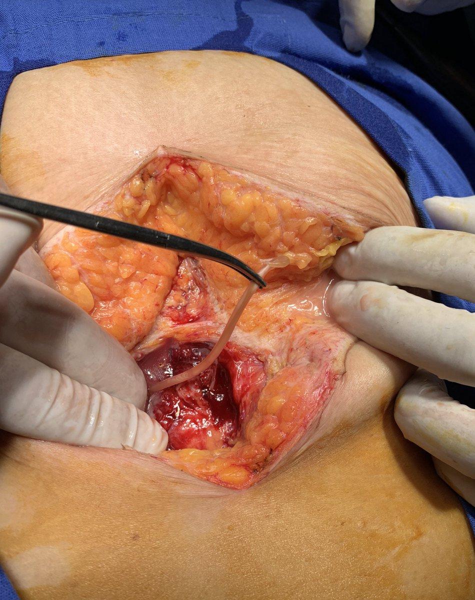 PO LAPE con @AaronDiazMD  ☑️Sepsis Abdominal secundario a peritonitis purulenta. ☑️Apendictis Aguda Complicada (lizada), apendicolito libre y base respetada (de milagro) ☑️Al realizar la laparotomia encontramos un pequeño amigo 🐍  #Cirugía #SoMe4Surgery https://t.co/5HaQVt3fQM https://t.co/DCIkT4rEaK