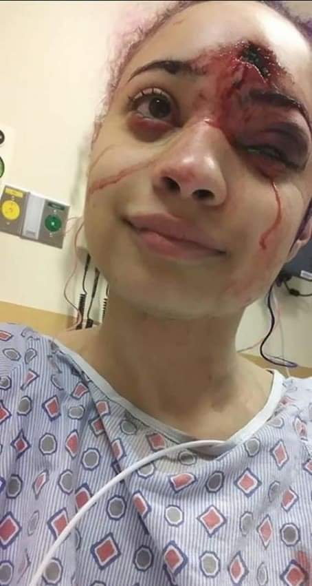 @realDonaldTrump This is the price of a 15 year old. She was protesting peacefully about George Floyd and yet a police officer shot a rubber bullet at her at point blank range. 15 years old. Enemy of the state?? I just see a young girl with a bullet hole in her head!! pic.twitter.com/L9U5HawAjp