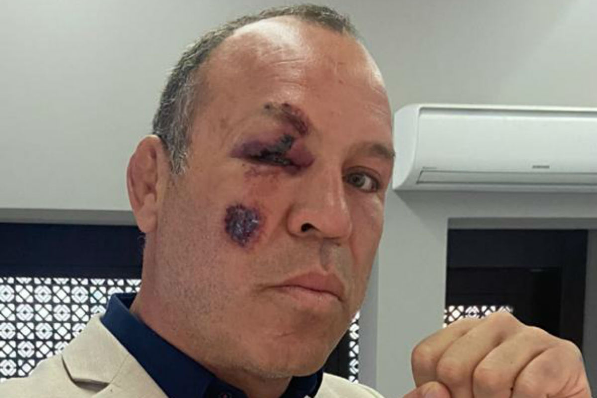 Glad to hear that Wanderlei Silva is doing fine after being hit by a car (again!) in Curitiba. Stay safe, Cachorro Louco. https://t.co/80dXCt4T7h https://t.co/uj4oQQFoho