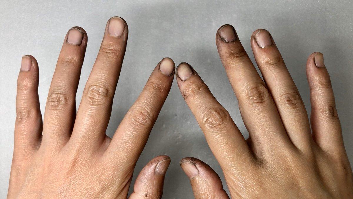 黒の塗料こぼしちゃった(T-T) 拭いたけど、爪の隙間に入り込んでーー。あぁぁぁぁぁぁぁぁぁー これ、なかなかとれないんですよねー(。-_-。) せめて、カラフルな色で上書きしようかしらん  #塗料 #やらかしたpic.twitter.com/jPTkqaiGsM