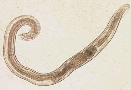 enterobius vermicularis lijecenje)
