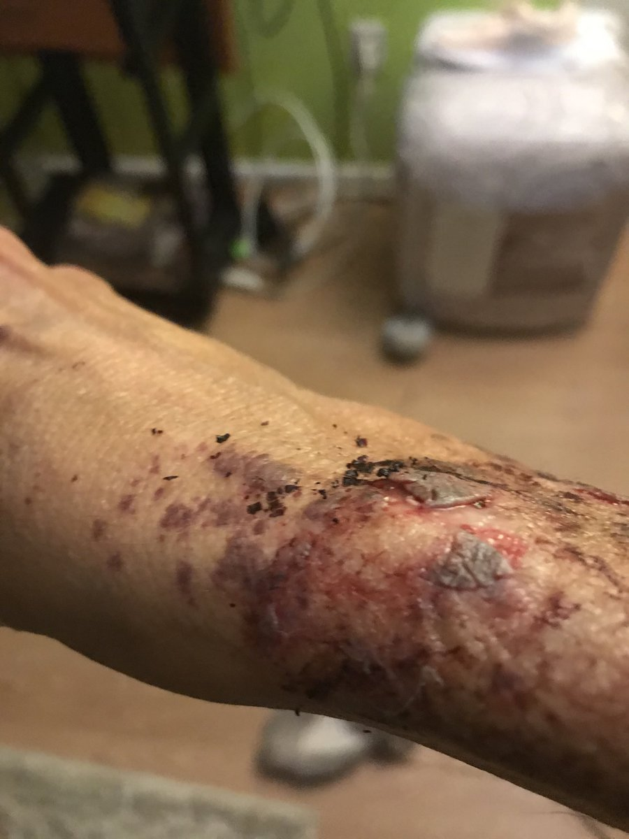 @BrianFrosh is this ok 4ur @AACOPD 2do2 an innocent woman in here home? These r just some of what he did 2me! Ask      @Steuart_Pittman 2show more or perhaps I will since I'm being ignored #PoliceBrutalityPandemic