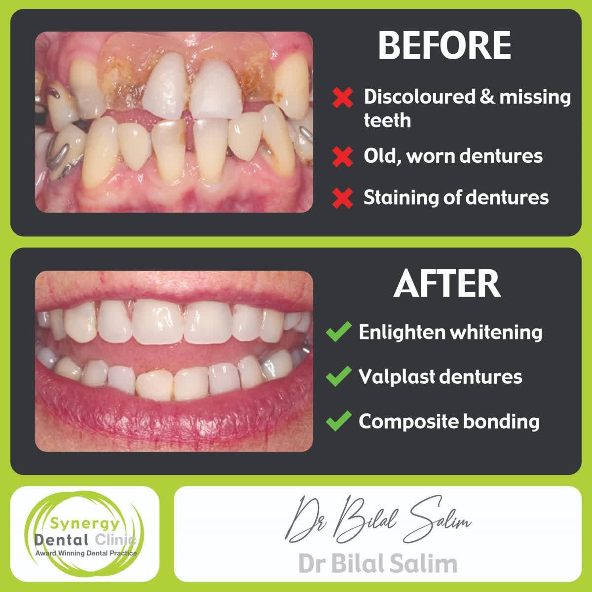 🌍 https://t.co/5pYuhYL7Ju  📱 Instagram - https://t.co/G2pNfgZG5S  🐦Twitter - SynergyDentist  🎥 Youtube - Synergy Dental Clinics  @enlightensmiles . . . . #toothwhitening #teethwhitening #smilemakeover #dentist #transformation #dentalphotography #cosmetics #makeupartist #fff https://t.co/QG7mn3Zu54