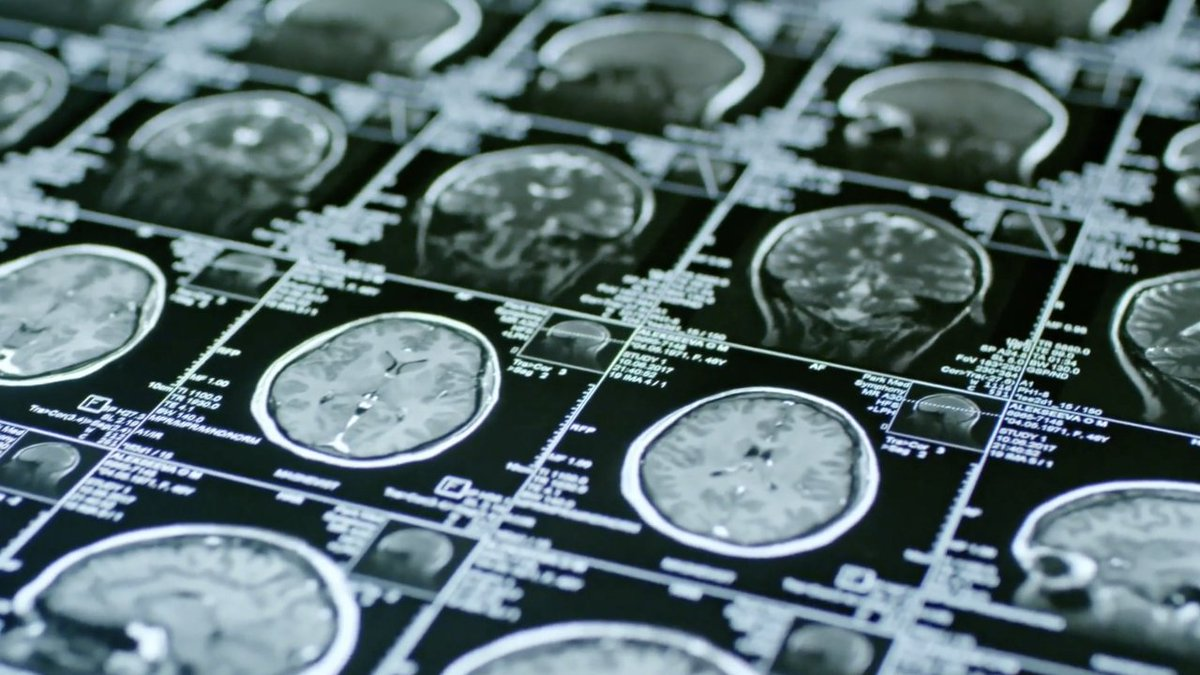 New discovery could be life changing for people with schizophrenia ow.ly/HgBj50zZe6k