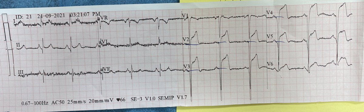 continues chest pain since 12 hours.  #CardioTwitter #EPeeps #MedEd #ECGchallenge #FOAMed