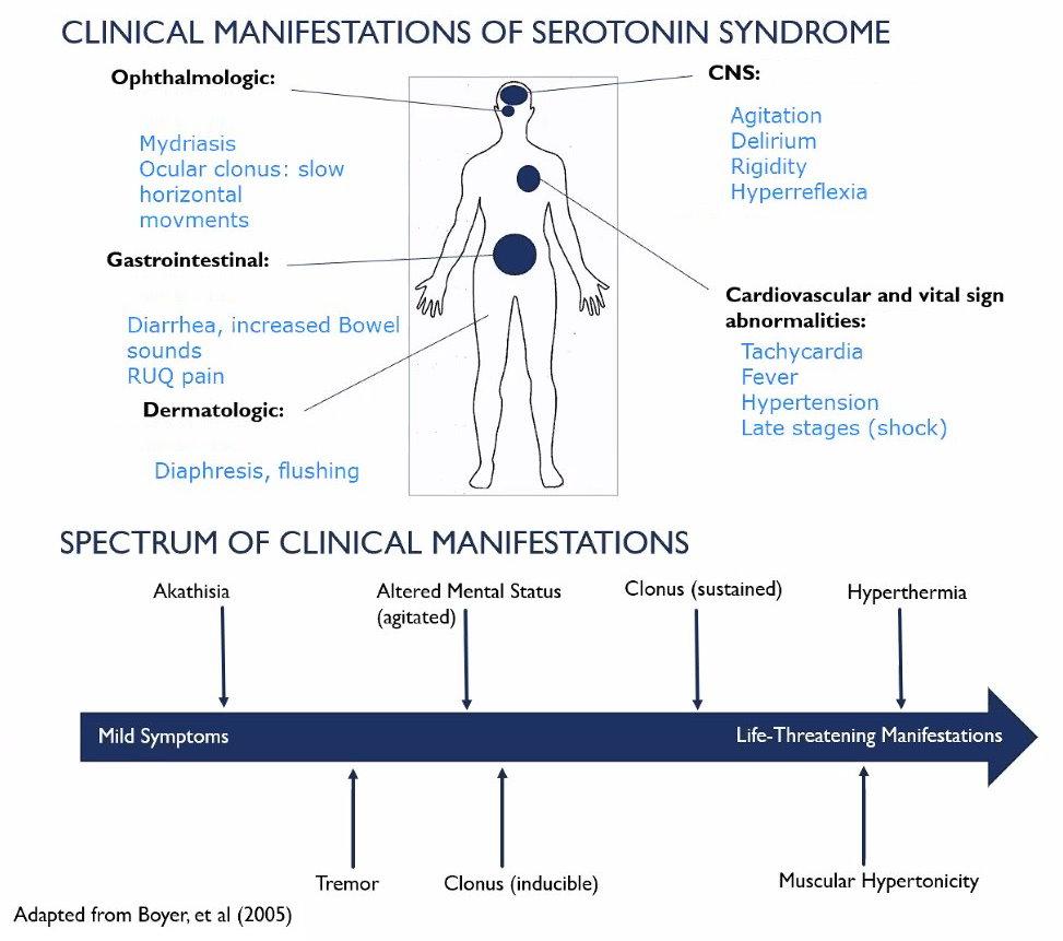Clinical Manifestations of Serotonin Syndrome via @ucsdim   grepmed.com/?q=serotonin+s…  #FOAMed #MedEd