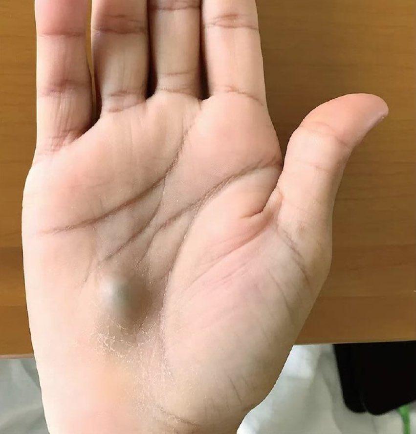 Dental cleaning      ⬇️ Fevers      ⬇️ Pulsatile hand mass      ⬇️ Ulnar artery mycotic aneurysm   #medtwitter nejm.org/doi/full/10.10…