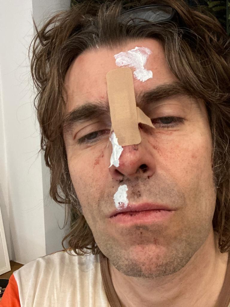 Liam Gallagher presumiendo su nariz rota