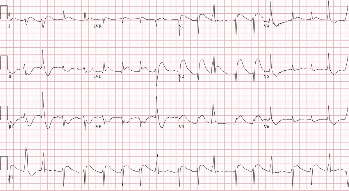 Here's the #ECG of a man who was rushed to the ER in full cardiac arrest with CPR in progress. This tracing was recorded immediately after ROSC.  What's the diagnosis?