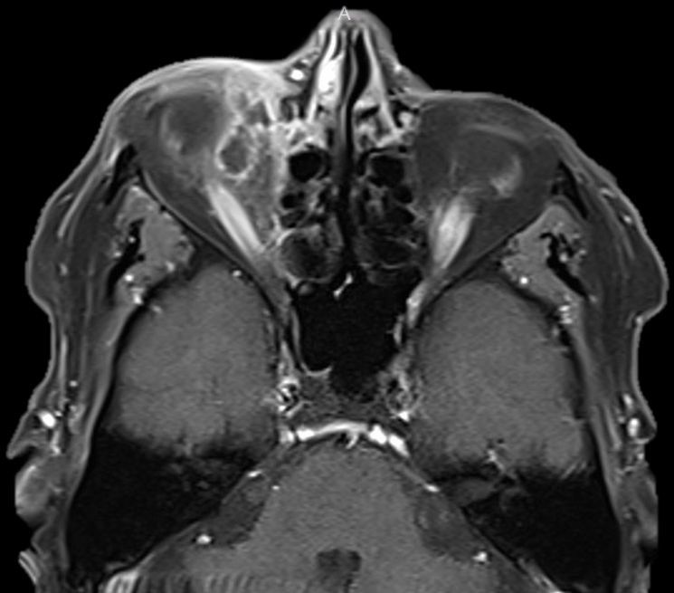 Weve just added new head and neck questions in our Board Review section! Whats the condition presented here: A 71-year-old woman presents with painful swelling of upper eyelid and fever. buff.ly/2Y4LWdS @EBRadiology #radiology