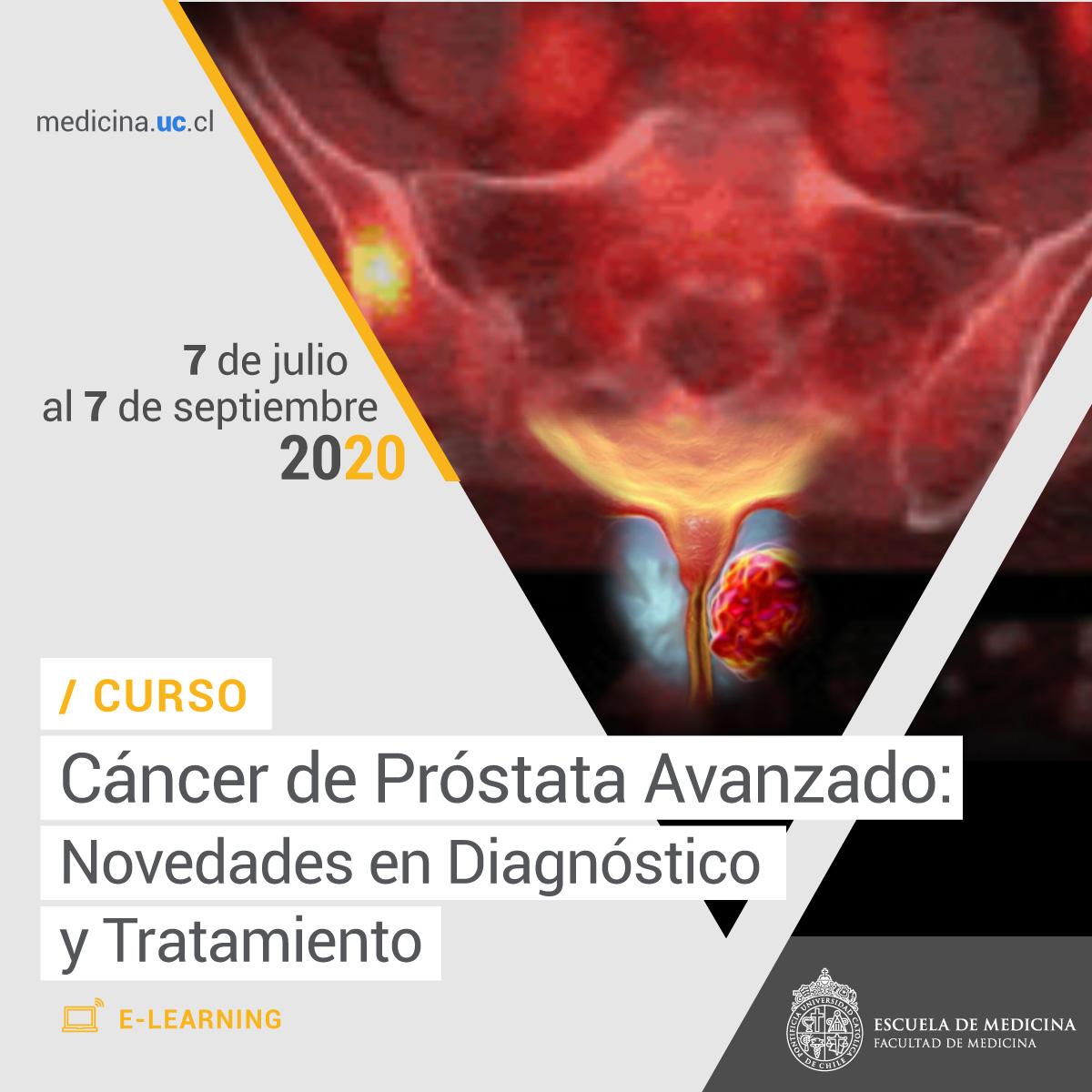 cancer de prostata niveles)