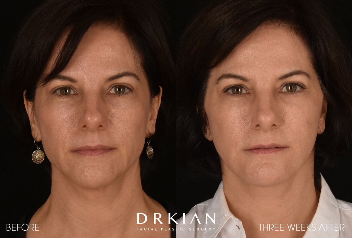 ⭐️ Micro Neck Lift with Fat Transfer to Chin & Cheeks #BeforeAndAfter Three Weeks  For appointments: ☎️ 424-644-2400  📧 info@RejuvaMedical.org https://t.co/zhuyd0ls56 https://t.co/3upuXbI7jN