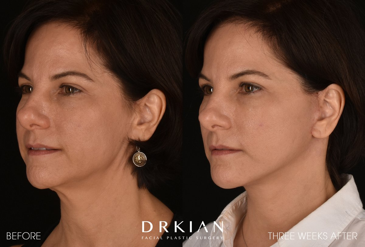 ⭐️ Micro Neck Lift with Fat Transfer to Chin & Cheeks #BeforeAndAfter Three Weeks  For appointments: ☎️ 424-644-2400  📧 info@RejuvaMedical.org https://t.co/zhuyd0ls56 https://t.co/McWLJ4HzEx