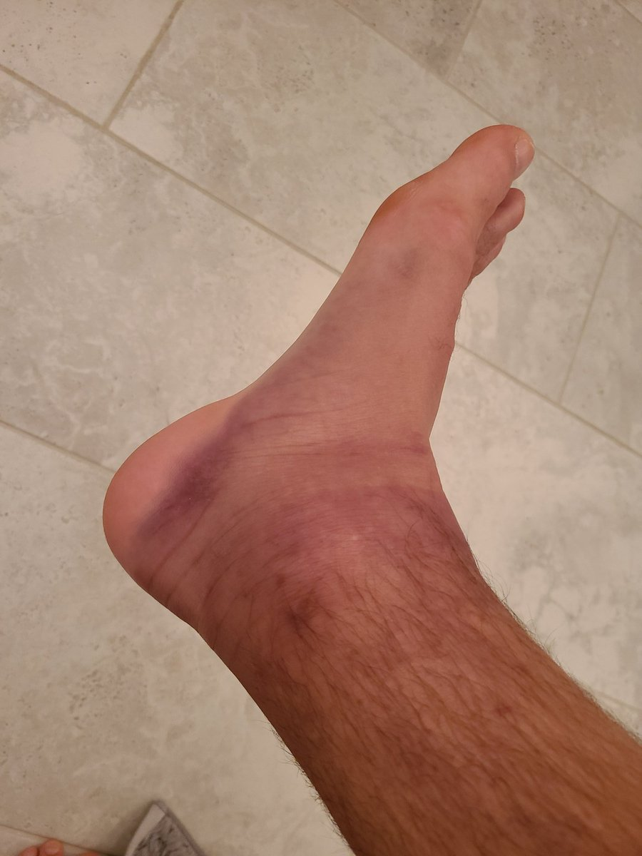 Kankle https://t.co/ofUaa2qcZG