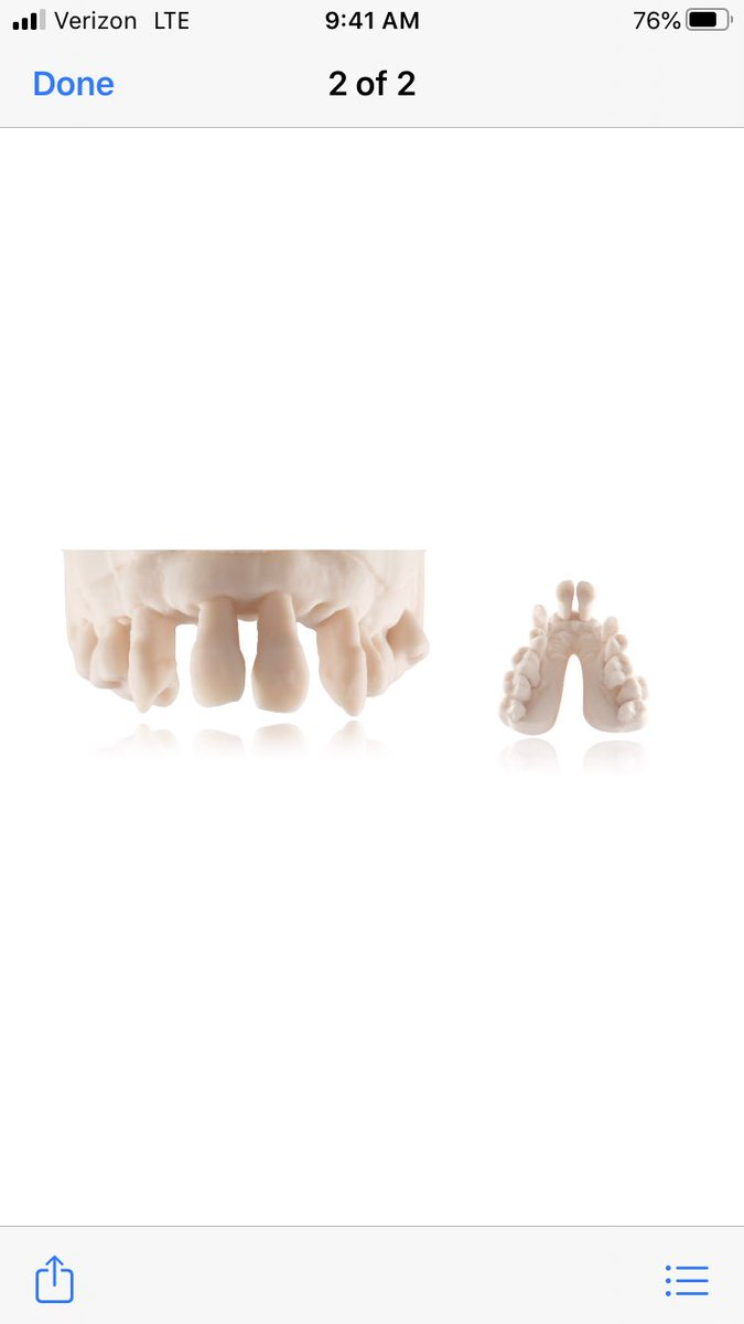 Beautiful @EnvisionTEC 3D printing provided by Sam Alawie of Beverly Hills Dental Lab https://t.co/J6niM7jXBX
