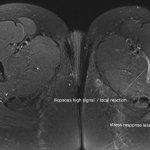 Image for the Tweet beginning: proximal femur bone stress injuries