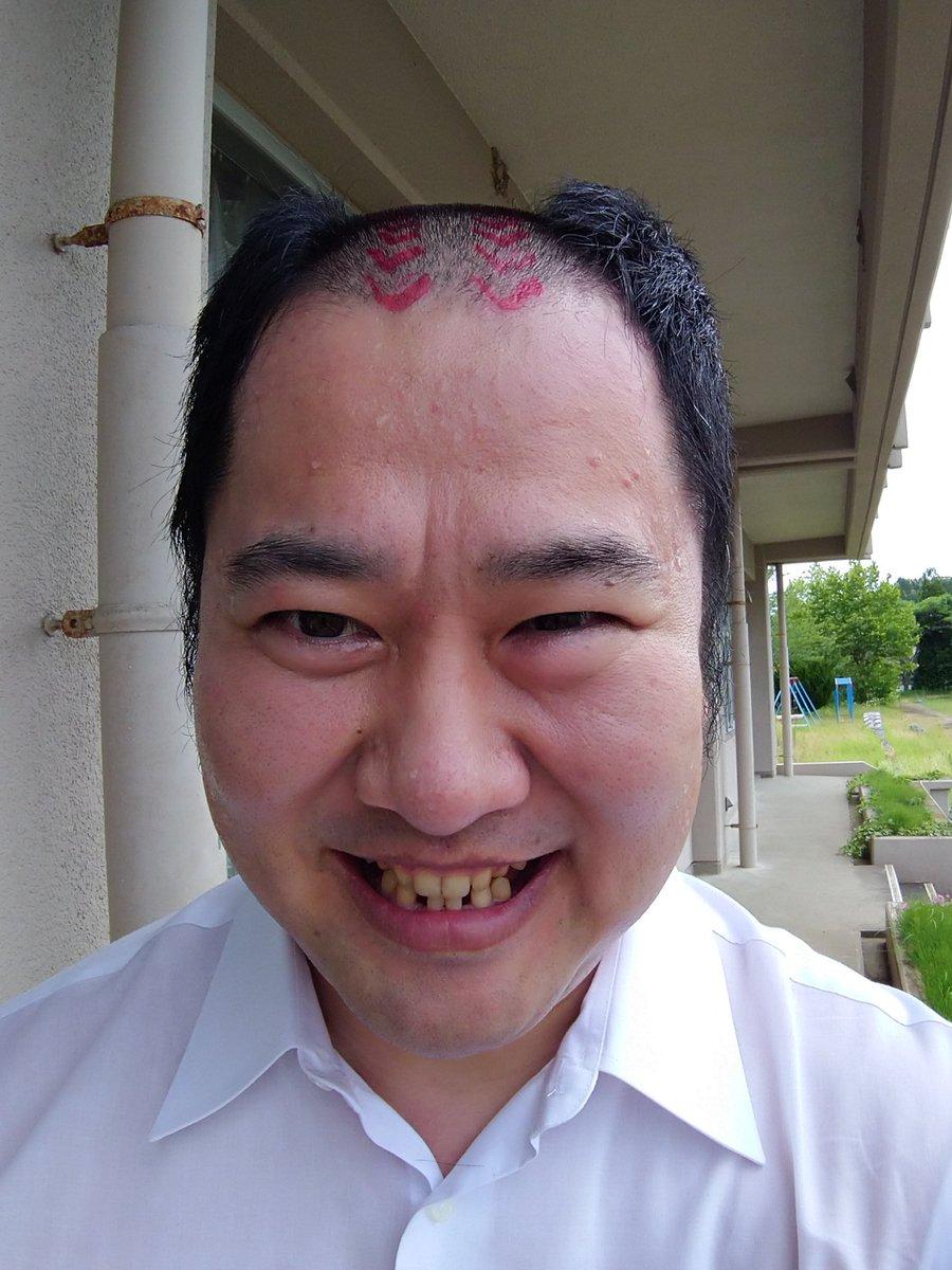 明るい 歯 とにかく 安村