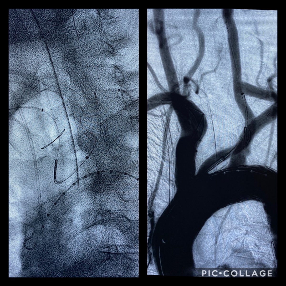 85 year old man, #embolization #stroke from #aortic #thrombus around left carotid and #subclavian, fixed with left #carotid subclavian, #Terumo relay, and #Boston scientific #sentinel #embolic protection device, that was a #lifesaver.pic.twitter.com/Djd1TLSEke
