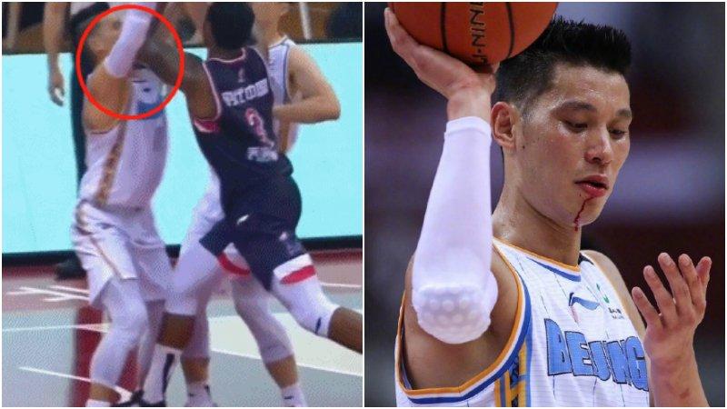 【影片】林書豪製造進攻犯規,被對手肘擊流血不止,賽後直言:以後也不會這樣做了!