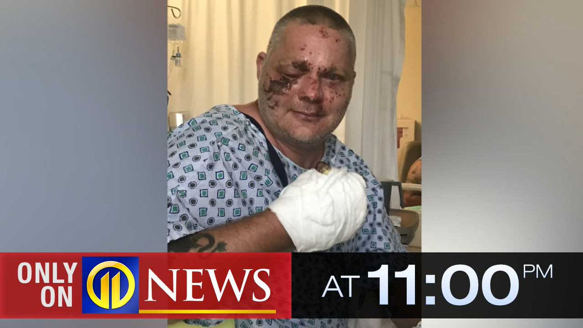 """""""It took a while for me to even start thinking about life."""" The victim of a devastating fireworks accident is warning others 2 years after he nearly lost his life.  ONLY on 11 at 11, he shares his story with @micheleWPXI. https://t.co/97Utbgm1eF https://t.co/pvVNumfShB"""