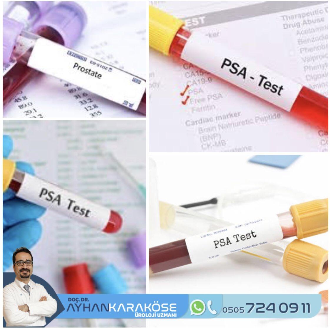 Elli yaşından sonra düzenli PSA kontrolü çok önemli. İhmal edilmemeli.  #prostat #prostatkanseri #psapic.twitter.com/oIR67BsUeq