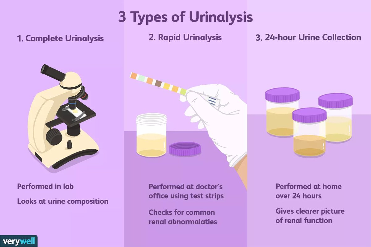 Plk Lancet Kenya On Twitter Urinalysis Is A Common Test Used To Analyze The Content And Chemical Makeup Of Your Urine While It Is Standardly Performed Before Surgery To Identify Any Kidney