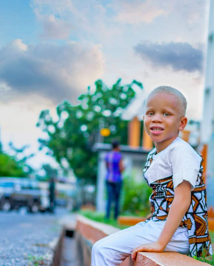 You have less melanin and I have more of it; but we are all humans, and that is all that matters.  #InternationalAlbinismAwarenessDay2020 #June13 #Made2Shine #ThisAbility #AdonaiStudios #AlbinismAwarenessMonth_Day24 https://t.co/CibPUKjqs0