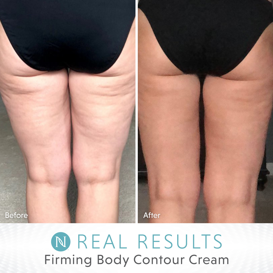 No more hiding behind that towel or cover up!  With our Firm Body Contour Cream, you'll feel like the pool area is your runway .   #neora #realresults #summertime #summermusthave  #summeressentials #perfectforsummer #firmskin #firmerskin #skinresults #bestskinever #summerlegspic.twitter.com/3wer9F4eCQ