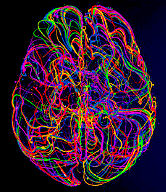 """How to analyze BRAIN BIOBANKS (and what NOT to do!): 5 Mind-Blowing, Thought-Provoking Ideas from #OHBM2020 so far - (1) @EllynRButler's poster (#1587), """"Statistical Pitfalls in Brain Age Analyses"""" https://t.co/Ti0jehYRlR - beware of hidden confounds! ... (1/5) (thread...) https://t.co/Yw4sPbDJsn"""