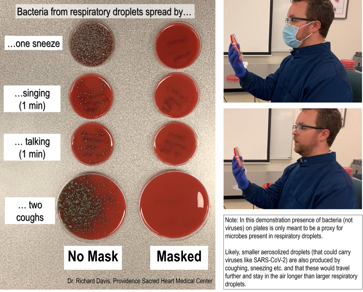 What does a mask do? Blocks respiratory droplets coming from your mouth and throat. Two simple demos: First, I sneezed, sang, talked & coughed toward an agar culture plate with or without a mask. Bacteria colonies show where droplets landed. A mask blocks virtually all of them.