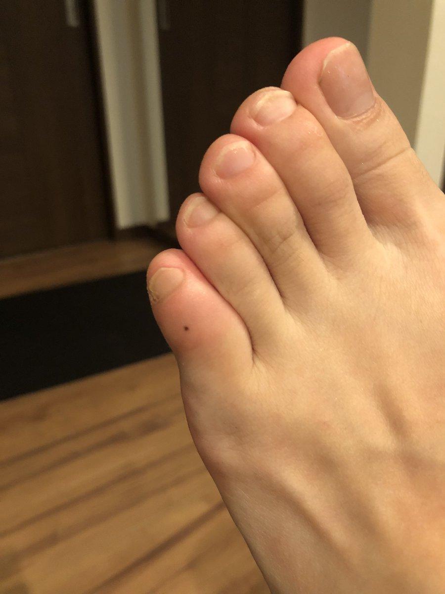 曲がっ てる 足