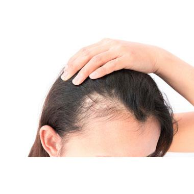 Spironolactone may help spur hair regrowth in women with female pattern hair loss https://t.co/2vPBYI5WB4 https://t.co/pYQ1C259LL