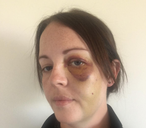 🚨 FEATURE: PC Rachel Alcock's day at work ended in hospital. The West Mercia officer had an x-ray on an eye and cheekbone that were swollen after she had been repeatedly punched in the face. Thankfully, there were no broken bones. Not this time anyway. https://t.co/mw5uXRXdF1 https://t.co/eoKSfEV8s8