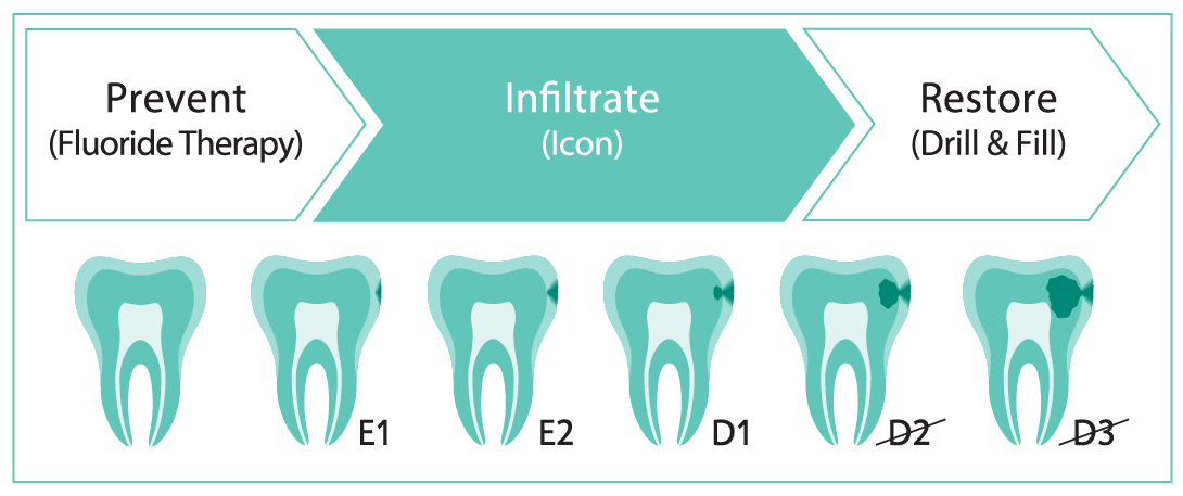 Did you know that caries that have progressed up to the first third of the dentin (D1) can still be treated with Icon? Icon can block the progression of an early caries to prevent the need for drilling and filling. Call us to chat about Icon. #IconbyDMG  https://t.co/pa7goFdW71 https://t.co/cxPGvIaZCc