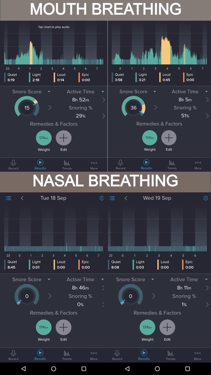 Here's what happened to my snoring/sleep during the Stanford experiment while mouth breathing vs. nasal breathing. More on this and other Breath ruminations tonight at 6PT, hosted by the AAPMD. https://t.co/PeXWPZKSdR https://t.co/sKaQVBIK3j