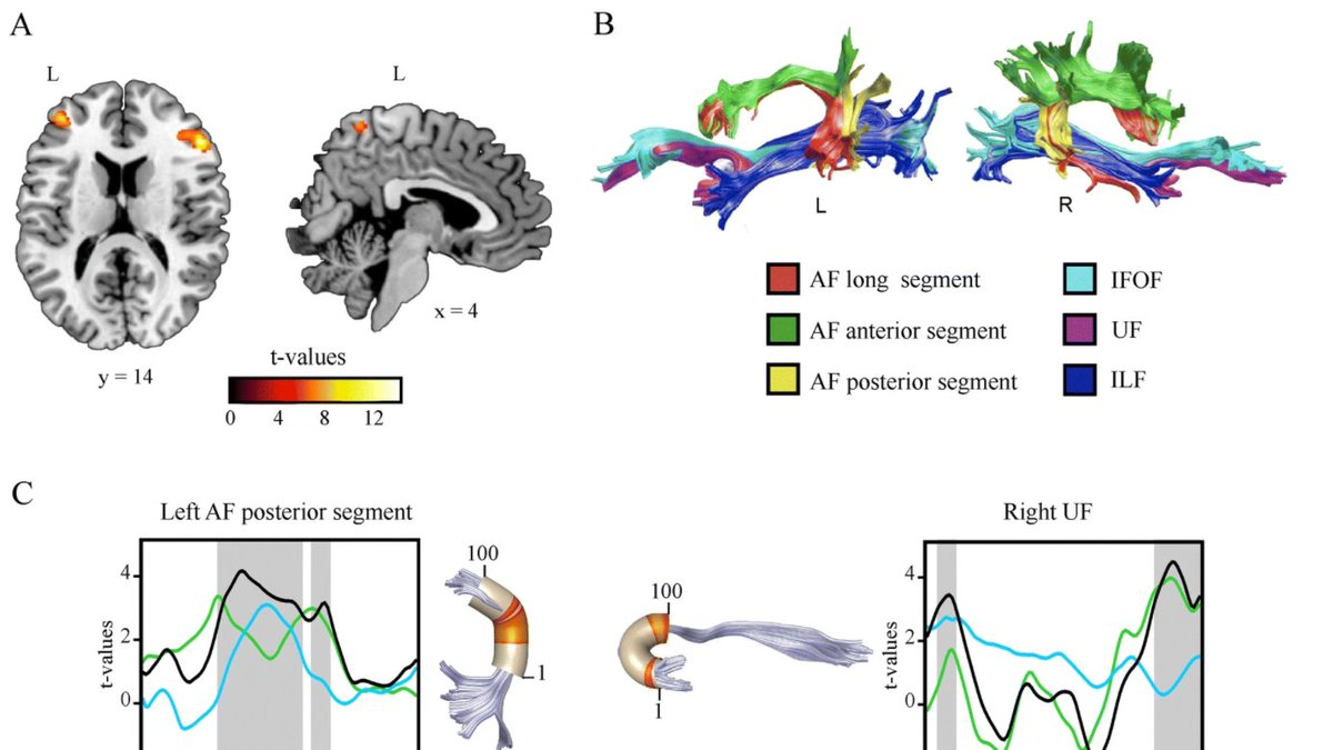 Expert backward speakers: see our paper showing cognitive, VBM, functional connectivity, and DTI signatures underlying extraordinary language abilities. Congrats @MJTorresPrioris and Adolfo Garcia  https://t.co/5cahHOhnVv  @GBHI_Fellows @atlanticfellows @UdeSA @Psicologia_UAI https://t.co/LEUqz0JwnO