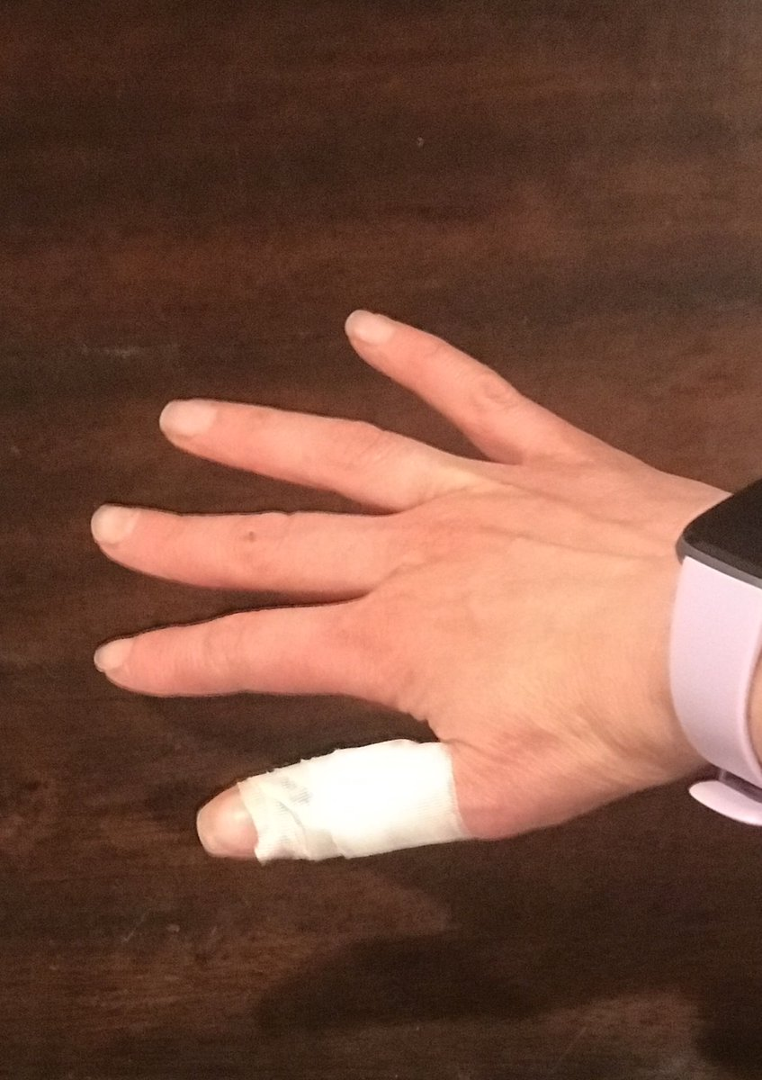 """Do culinary schools have a mandatory """"First Aid 101"""" course or are chefs simply better at knowing where their appendages end and the food begins? #cookingathome #oopspic.twitter.com/WIArdaftkl"""