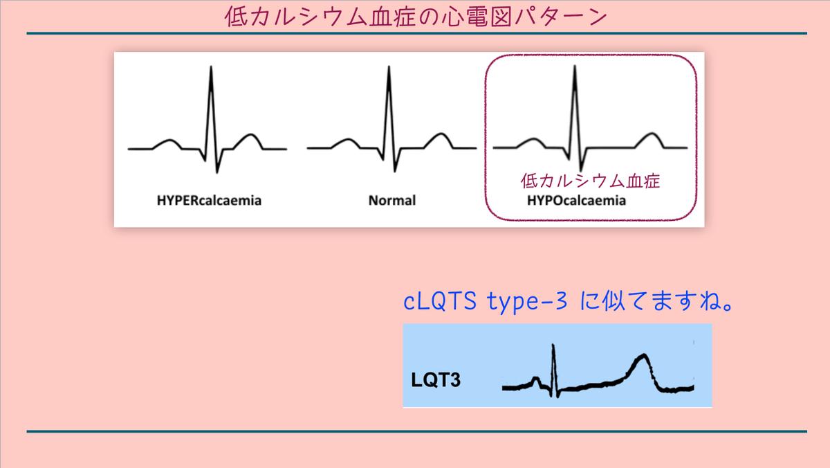 低 カルシウム 血 症 心電図