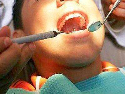 Cure dentistiche gratuite a Palermo per i minori svantaggiati - https://t.co/80EMKxb73p #blogsicilianotizie