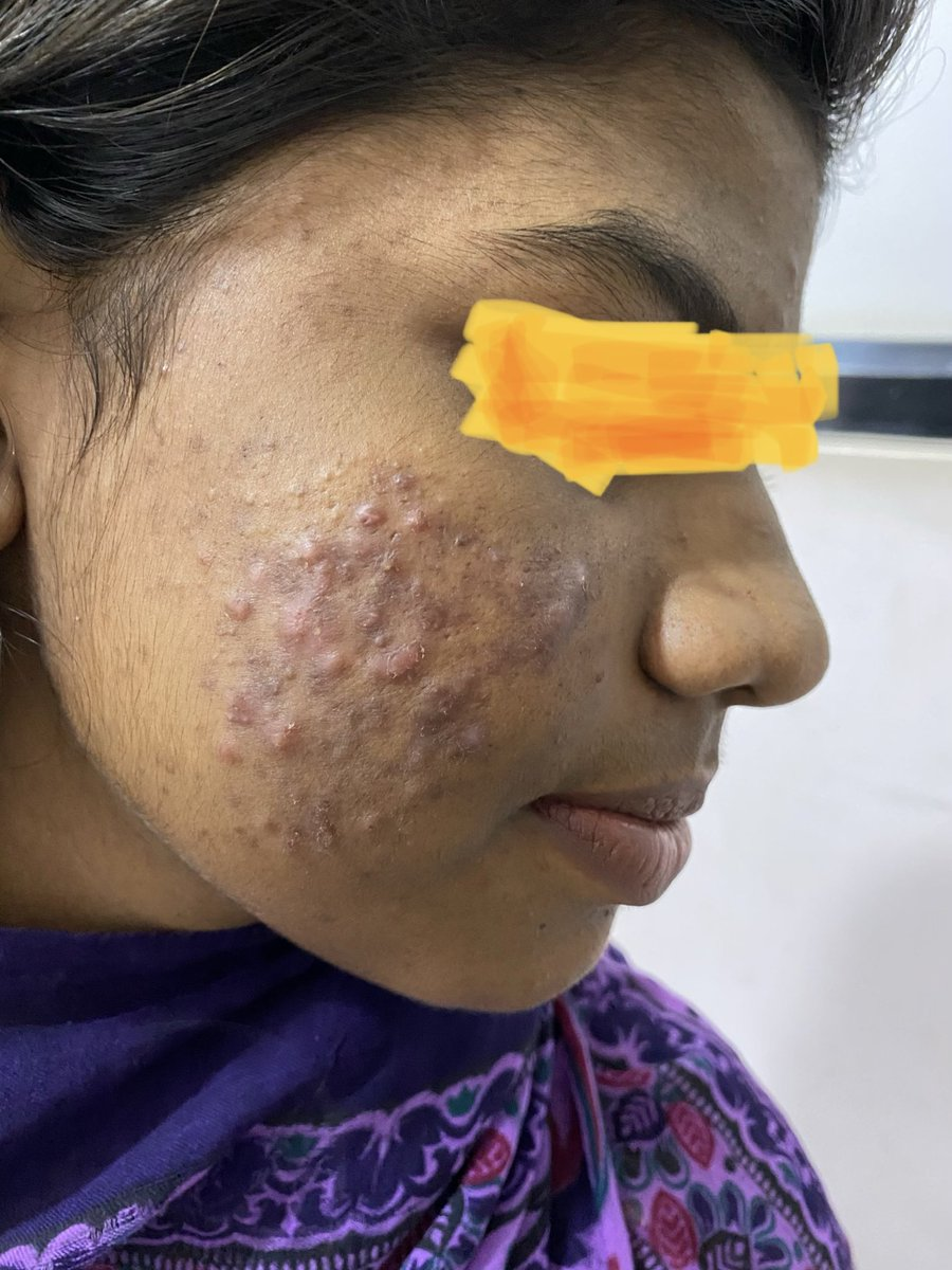 Topical steroids for acne before and after effects of steroids
