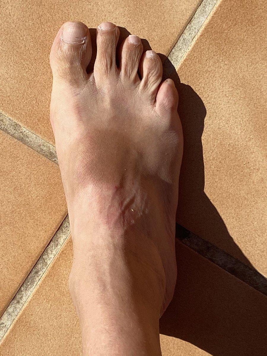 Cuánto se habla del pie de atleta y qué poquito del pie de cebra que se nos queda a los que llevamos sandalias. #DobleRasero. https://t.co/Mpz3zGEjU4