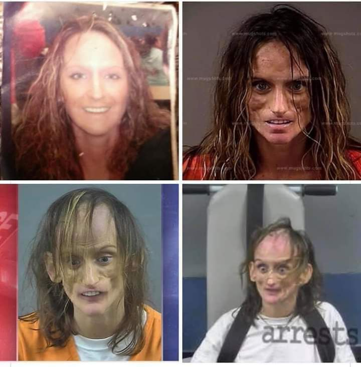 If you've ever thought of using Meth, look at this progression!   One woman . . .  one life . . .  gone 😱 https://t.co/ABkNUFs2ad