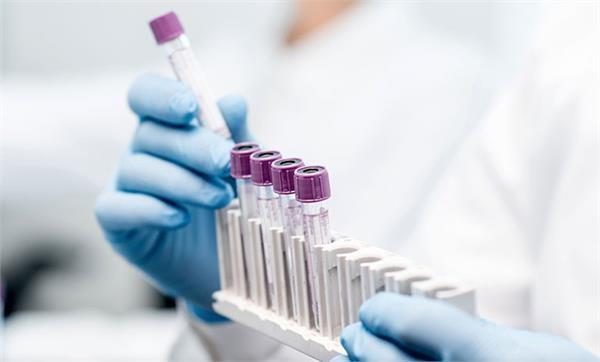 बड़ी ख़बर: DSP और उनकी पत्नी की कोरोना रिपोर्ट 'पॉजिटिव' https://punjab.punjabkesari.in/punjab/news/dsp-and-his-wife-s-corona-report--positive-1197853… #Punjab #Coronavirus #CoronavirusOutbreak #CoronavirusUpdates #COVID19 #CoronavirusPandemic #CoronaVirusIndia #CoronaAlert #CoroaPositive #CoronaCases #CoronaPatient #DSP #Wife #PositiveReportpic.twitter.com/3ZdMS0Tsfu