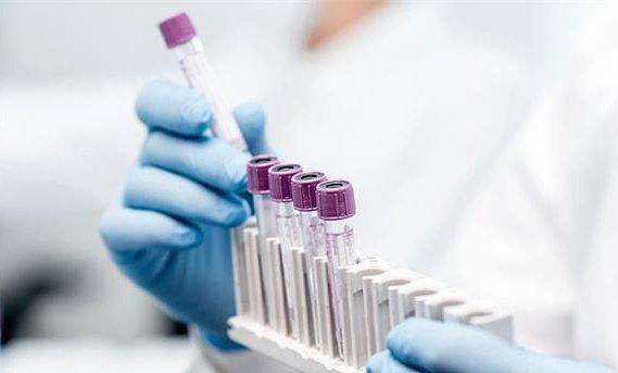 पंजाब में जारी कोरोना कहर, वायरस से मुक्तसर में पहली मौत https://punjab.punjabkesari.in/punjab/news/corona-havoc-released-in-punjab-first-death-in-virus-free-1198021… #Punjab #Coronavirus #CoronavirusOutbreak #CoronavirusUpdates #COVID19 #CoronavirusPandemic #CoronaVirusIndia #CoronaAlert #CoroaPositive #CoronaCases #deathpic.twitter.com/zlRgaZydzo