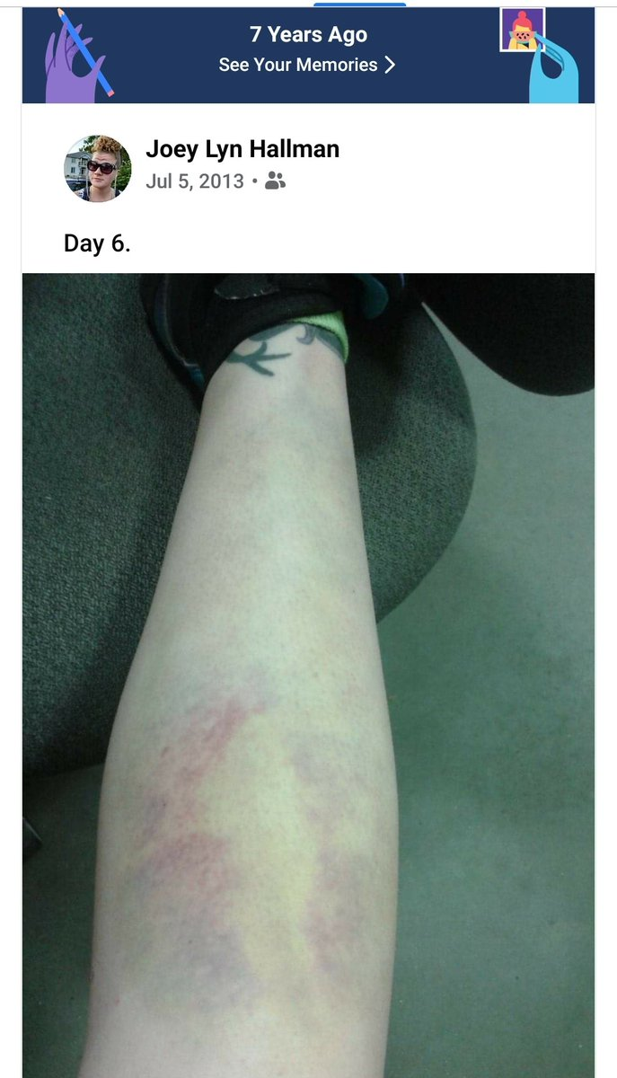 On day 7 I found out my shin was fractured in 8 places and that my ankle was broken. Lol https://t.co/5vD58mKVEJ