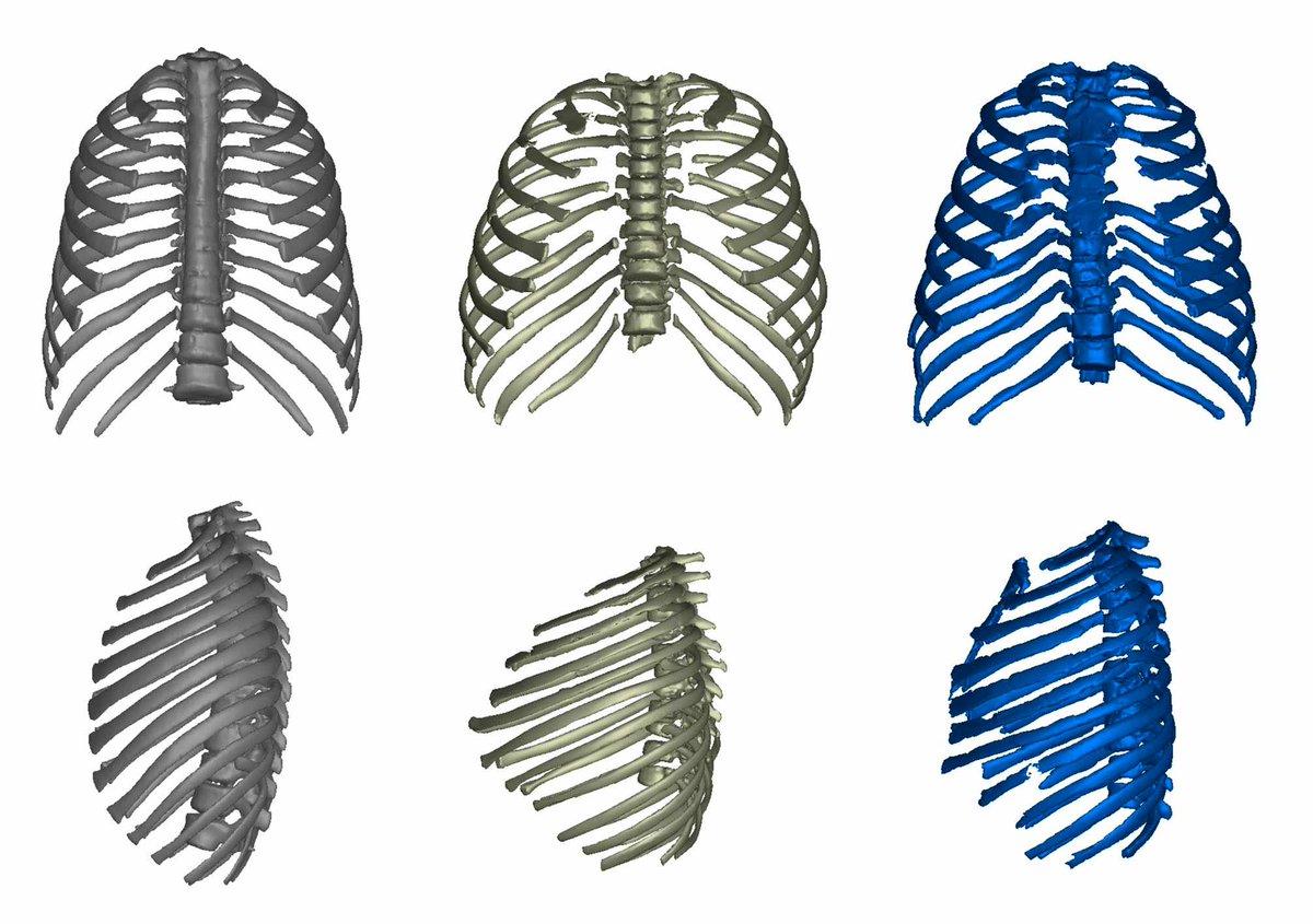 Ribcage of Turkana Boy (center) compared to a modern human (left) and the Kebara Neanderthal skeleton (right) https://natureecoevocommunity.nature.com/posts/reconstructing-the-thorax-of-the-turkana-boy?fbclid=IwAR2ohAV1lTCD5lgcu-M0Yn_FiGy89xzI3rGlWIsjW6aOP3nCX0f3PQdAYHQ