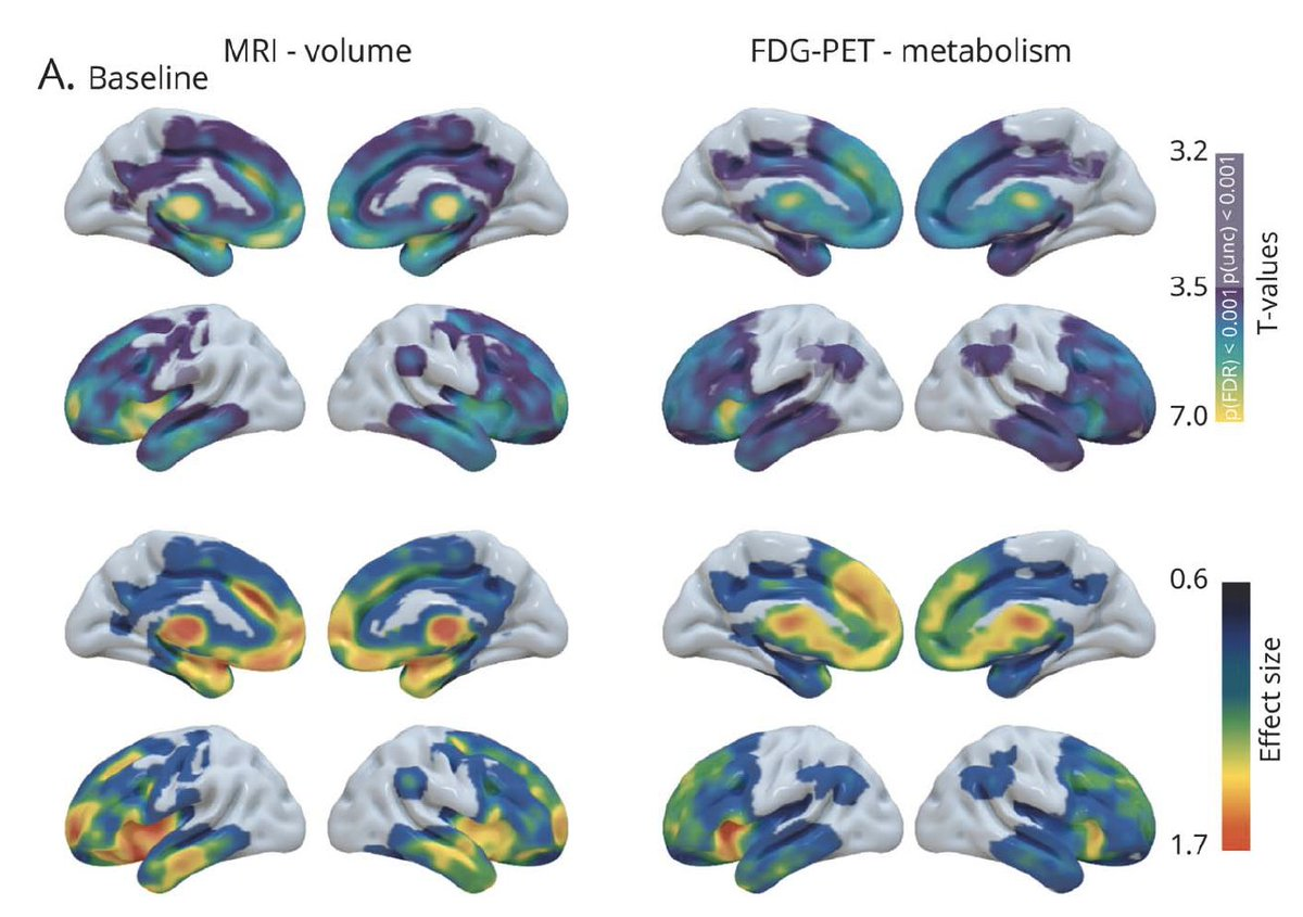 🚨 new paper alert (https://t.co/d2w2Qnodcf) from Alex Bejanin, looking at longitudinal structural MRI vs. FDG-PET in bfFTD, nfvPPA, and svPPA (4rnti data, https://t.co/dIxSxJGLHz)  feat. @leoiacca @AlbaLanguage @DickersonLabMGH and many others off twitter from @UCSFmac & beyond https://t.co/STOFwIfRRV