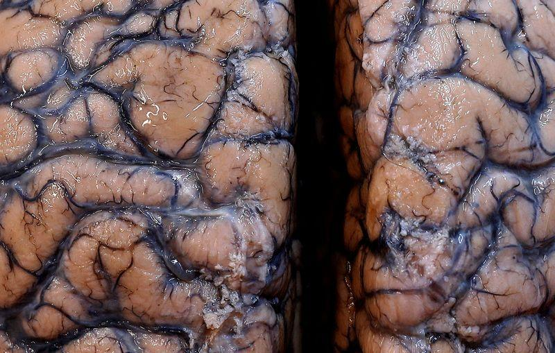 Scientists warn of potential wave of COVID-linked brain damage reut.rs/2ZcvTLP
