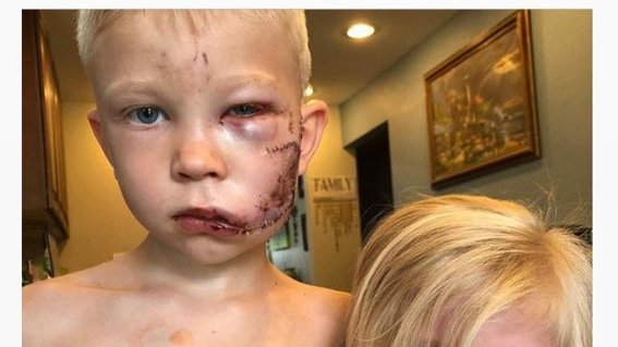 ヒーローだよ、この子。 6歳のブリッジャーくん、突進する犬の間に立ち塞がって妹を救う。顔や頭を何度も噛まれたけど、一緒に逃げて妹の安全を確保。「もし誰かが死ぬとしたら、僕が死ぬべきだと思った」と語る。整形外科医から90針もの縫合を受け、ようやく自宅で安静。